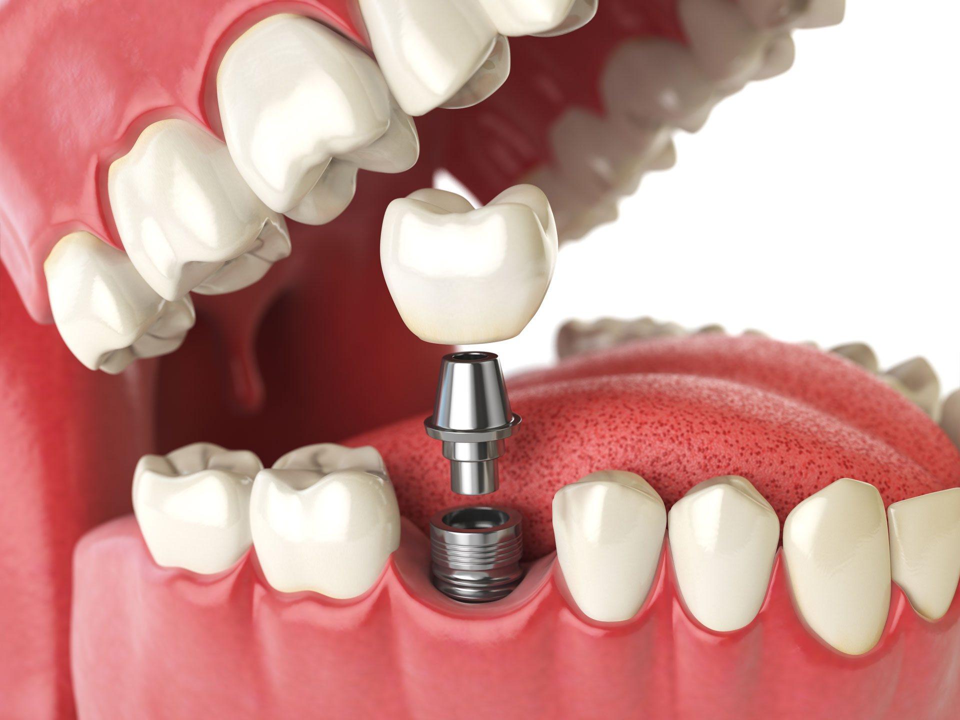 Импланты зубные в картинках